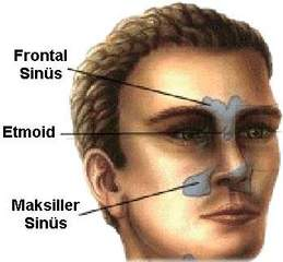 Burun sinüsleri – İltihaplar,sinüs iltihaplarında cerrahi