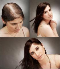 Gelişim aşamasındaki saç kaybı tedavileri